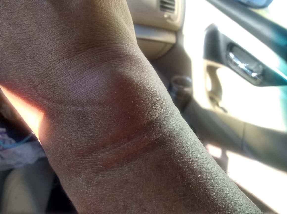 Dametrio's wrist after hand-cuffs were applied extremely tight.